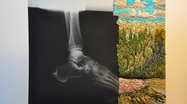 Вишивка на рентген-знімках
