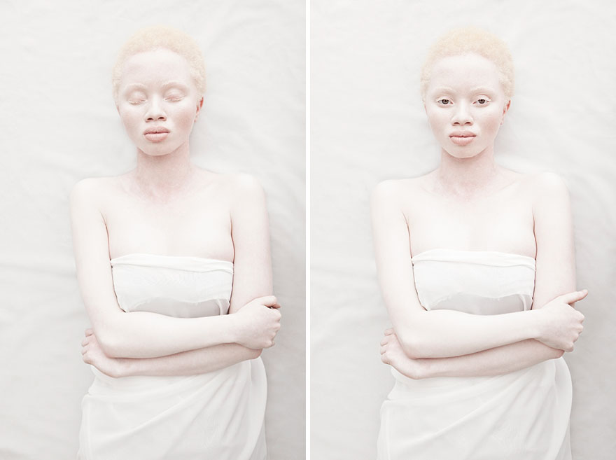 beautiful-albino-people-albinism-103-582f0093cbc45__880