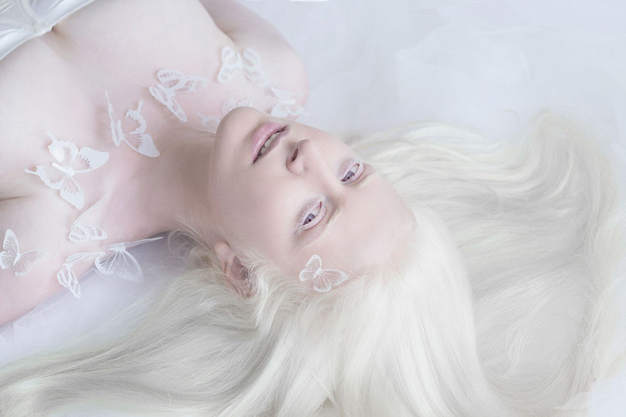 beautiful-albino-people-albinism-11-582ebf04a7e64__880