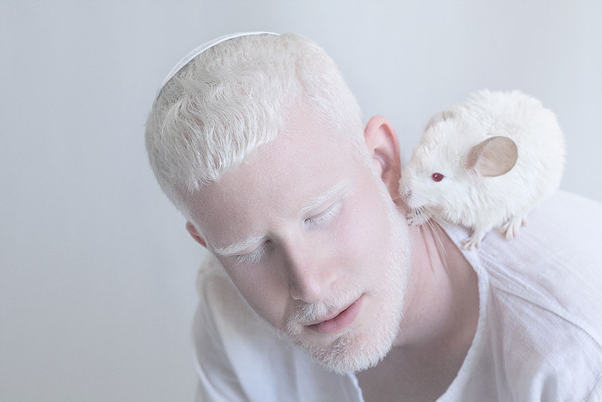 beautiful-albino-people-albinism-12-582ebf0687ed7__880