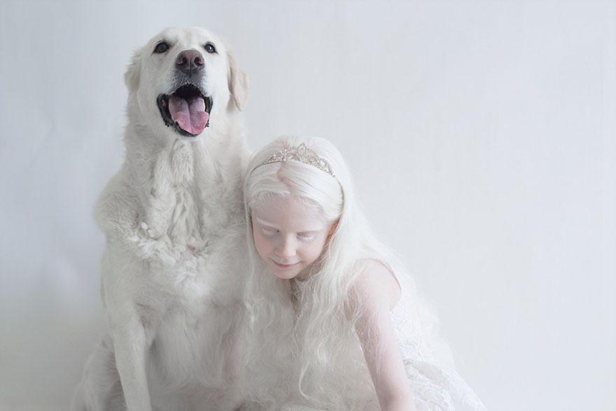 beautiful-albino-people-albinism-16-582ebf0fb73c7__880