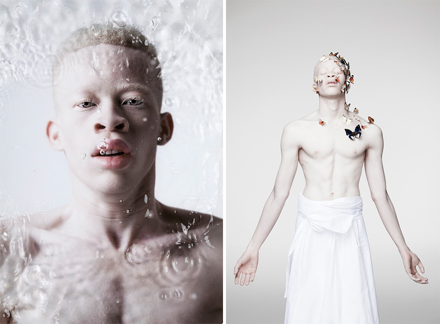 beautiful-albino-people-albinism-2-582eff9f023c1__880