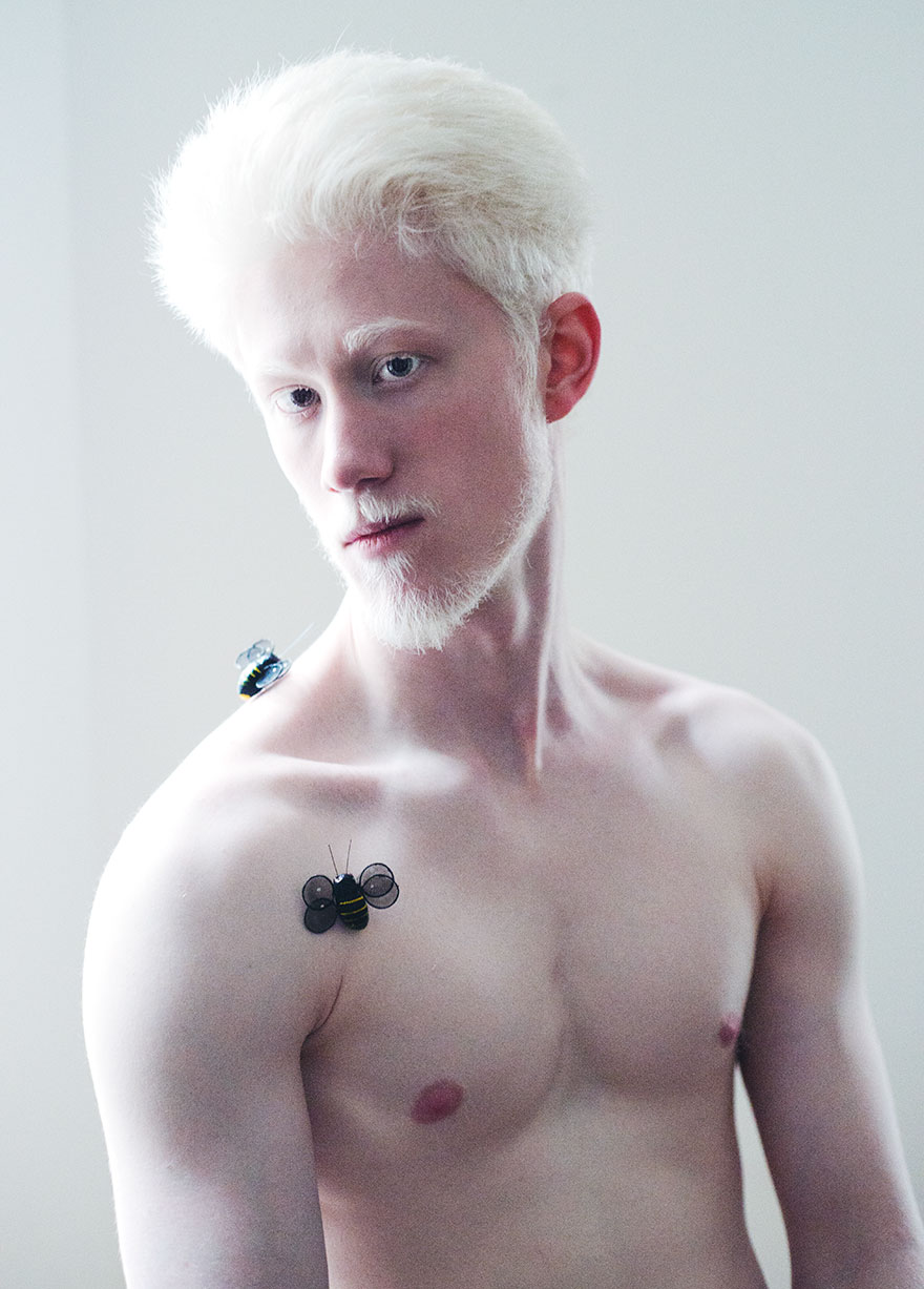 beautiful-albino-people-albinism-33-582edcd23316f__880