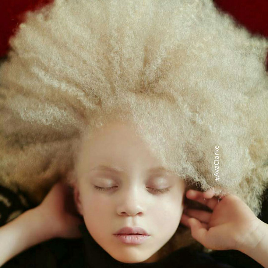 beautiful-albino-people-albinism-46-582f0ea51b8b1__880