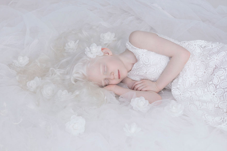 beautiful-albino-people-albinism-9-582ebf00d33b0__880