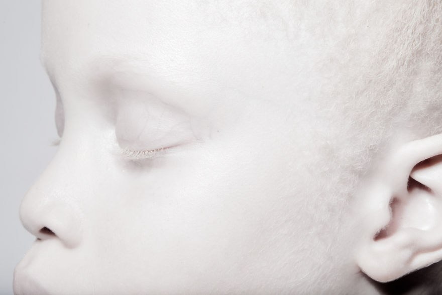 albino-twins-models-3-58e74b0055870__880