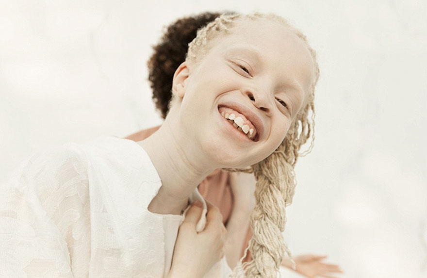albino-twins-models-58e74dbfd752b__880