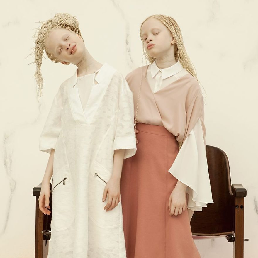 albino-twins-models-58e7514b53e64__880