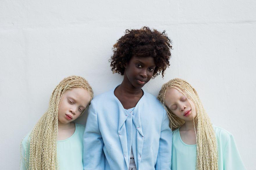 albino-twins-models-58e75b30b735f__880